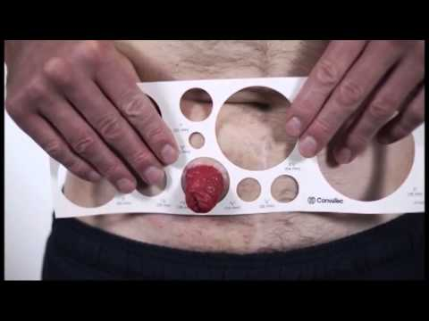 Measuring � How to size your stoma